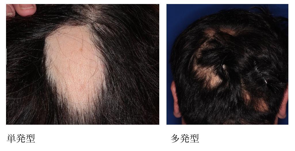 円形 脱毛 症 多発 型